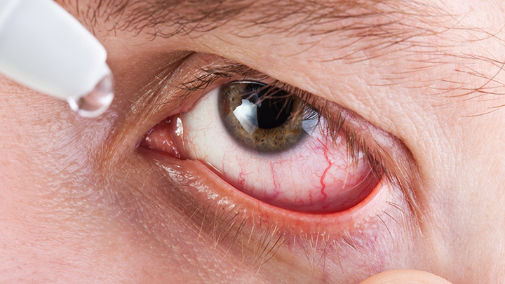 Stay safe when purchasing halloween contact lenses