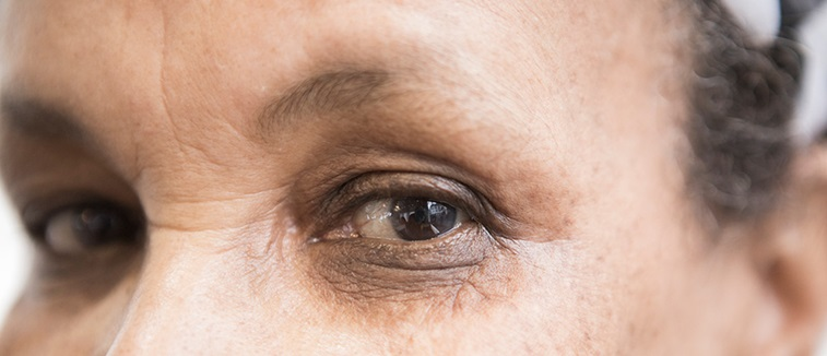 Smoking and eye health patient leaflet