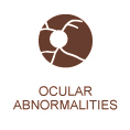 Ocular abnormalities