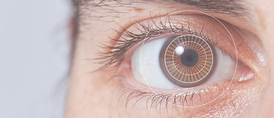 An optometrist's personal account of laser eye surgery