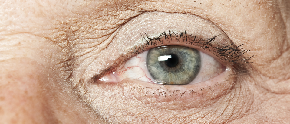 glaucoma symptoms and treatment eye health advice
