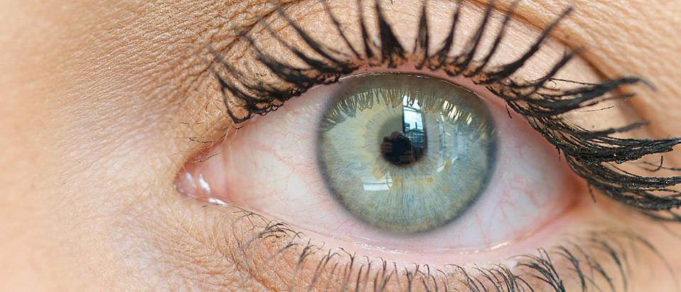 MGD eye condition header