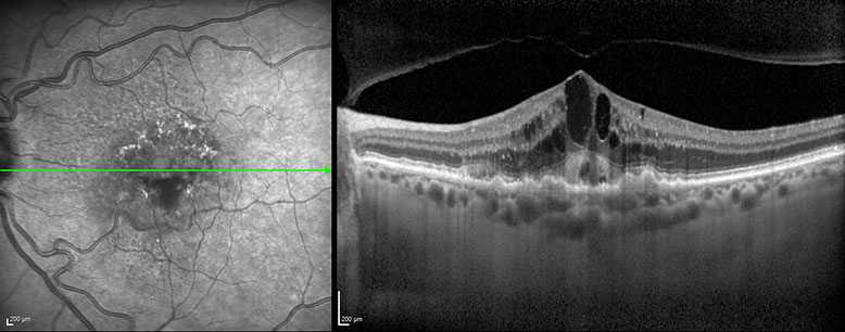 OCT image of neovascular age-related macular degeneration