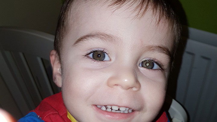A child with Retinoblastoma