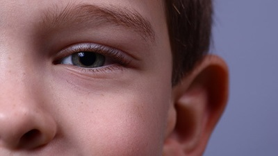 Establishment of an eye care service in special schools in Wales under consultation