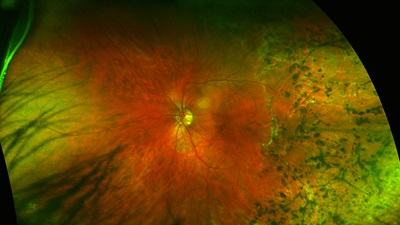 Stem cell therapy hope for retinitis pigmentosa