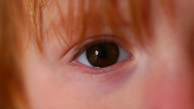 A small child's eye