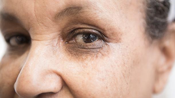 Smoking and eye health