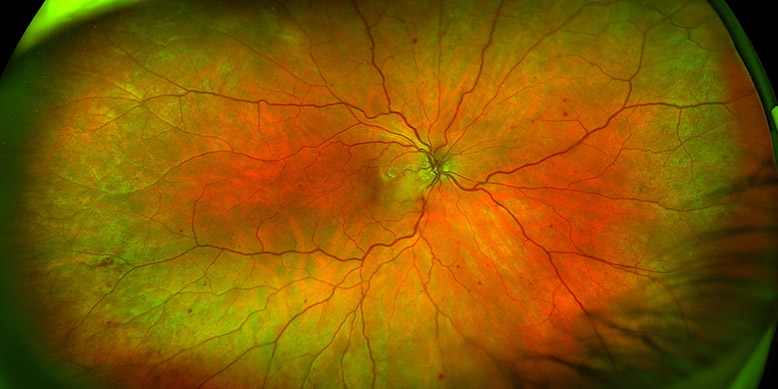 Ocular Ischemic Syndrome