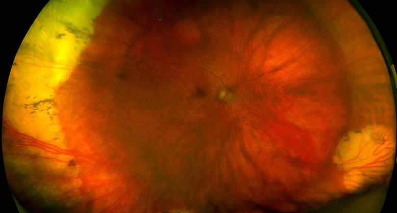 Sclera Buckle in an AMD patient