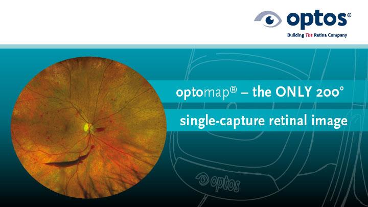 Optos advert