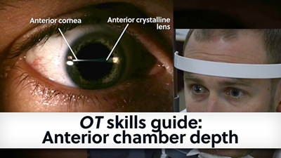 Banner cover image of anterior chamber depth skills guide