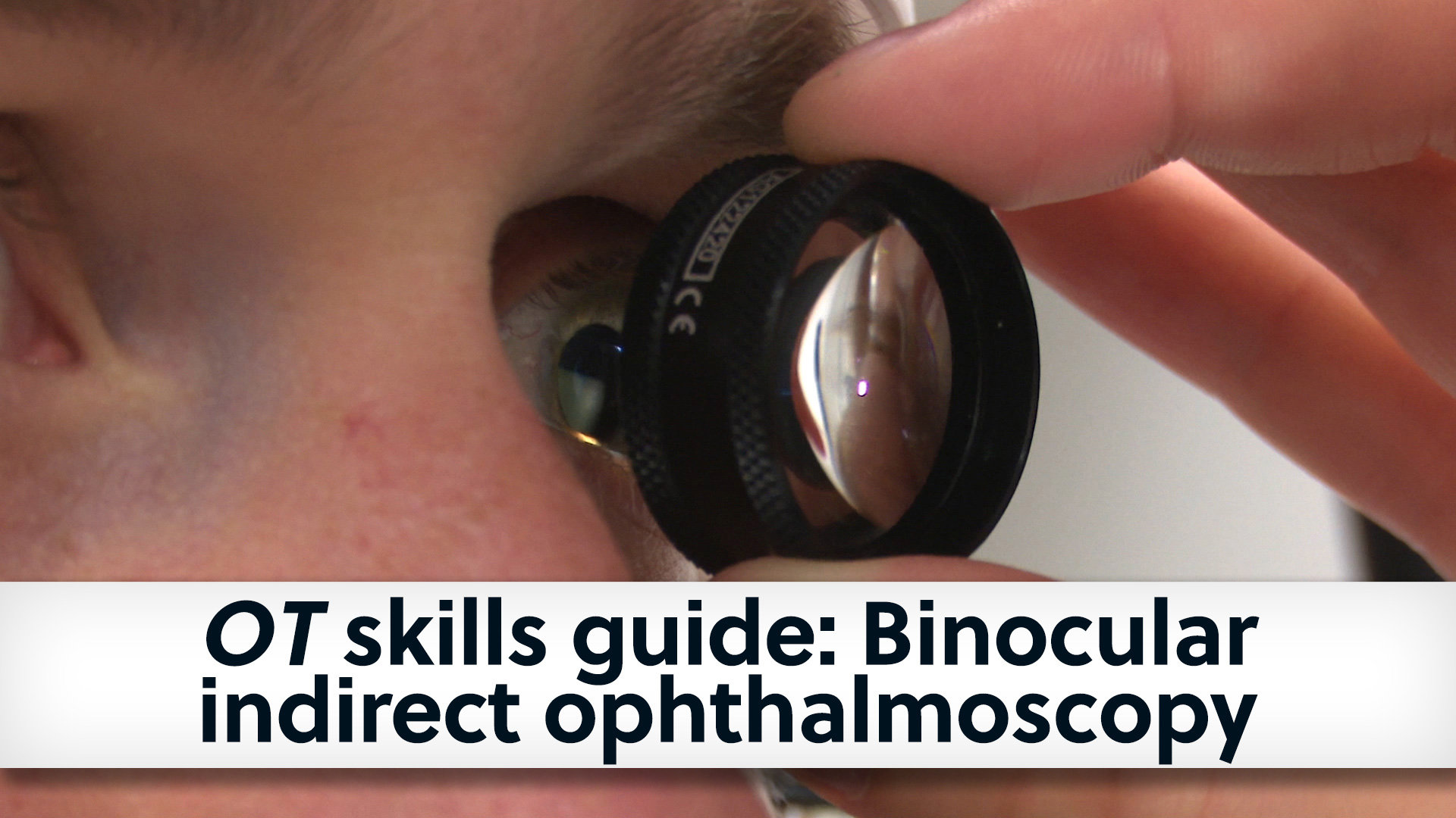 Banner cover image of the binocular indirect ophthalmoscopy skills guide