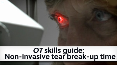 OT skills guide non invasive tear breakup time banner