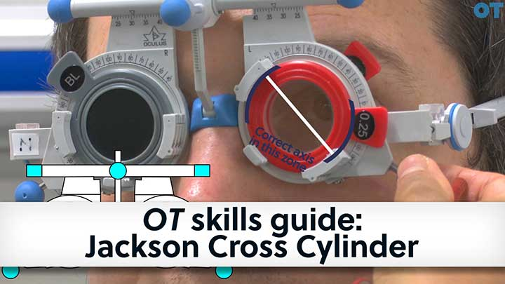 OT skills guide: Jackson Cross Cylinder video
