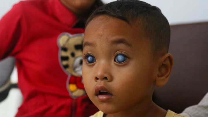 A child with cataracts in Cambodia