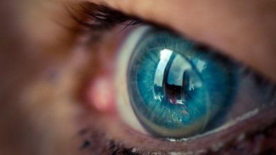 Contact lens in eye