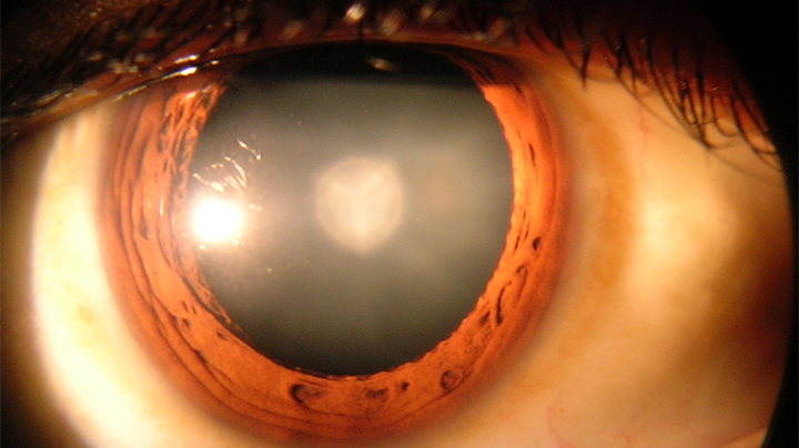 14 lose sight after cataract operation
