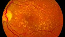 AMD in the eye