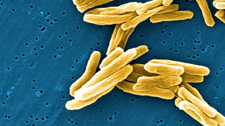 TB rates in London higher than Rwanda and Iran