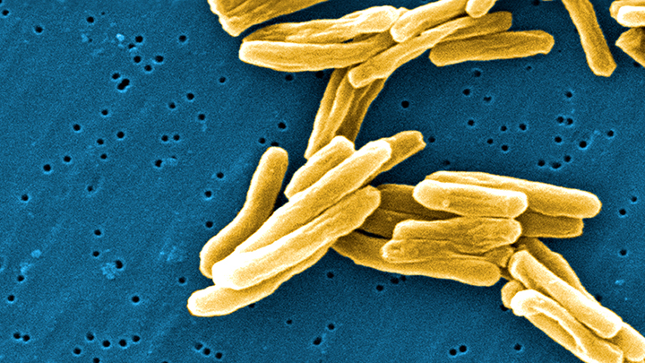 TB rates in London higher than Rwanda and Iran