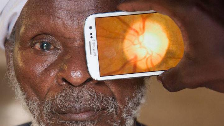 Peek retinal imaging phone app