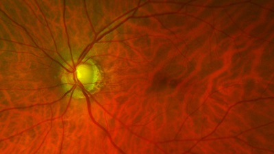 Glaucoma consultation launched