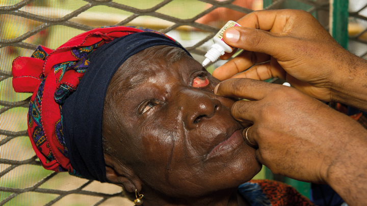 eye drop treatment for cataracts