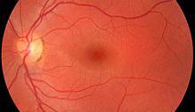 Glaucoma linked with sleep disruption