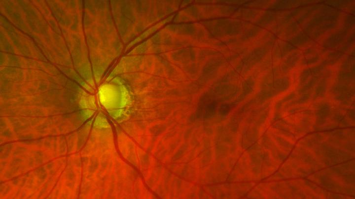 Glaucoma fundoscopy