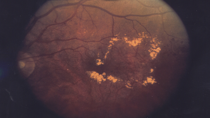Glaucoma shown in back of the eye image