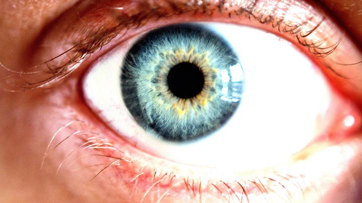 Inflamed retina