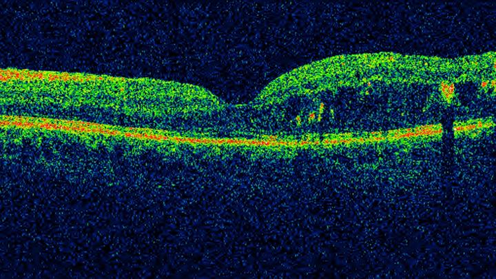 OCT scan of diabetic macular oedema