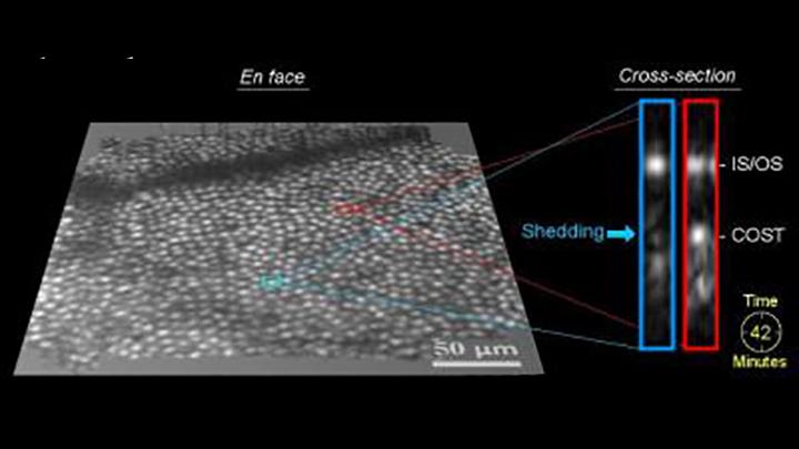 Photoreceptor disc shedding