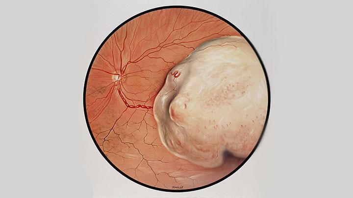 Retinal tumour
