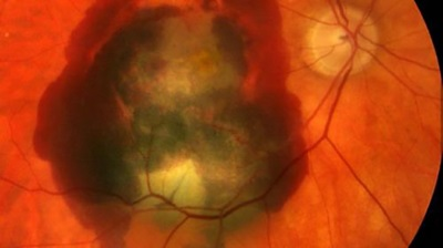 Scientists identify new genetic risk factors for AMD