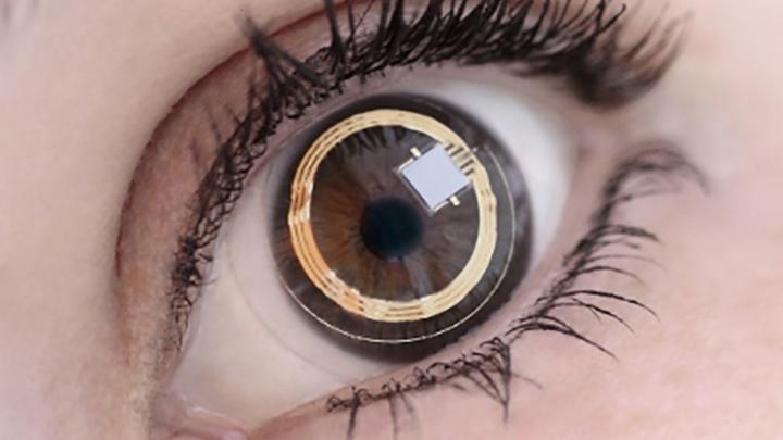 Smart contact lenses help predict glaucoma progression