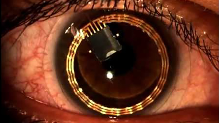 Smart lenses target glucose monitoring