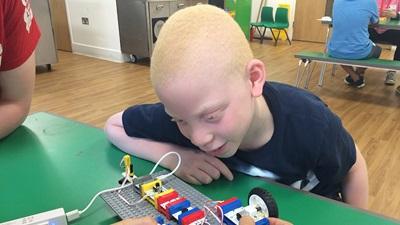 Child with vision impairment