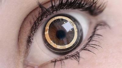 Sensimed lens