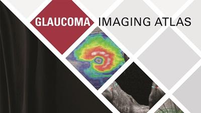 Heidelberg glaucoma atlas