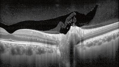 OCT scan
