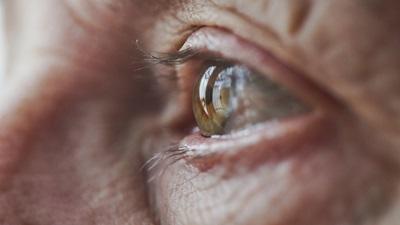 Ageing eye