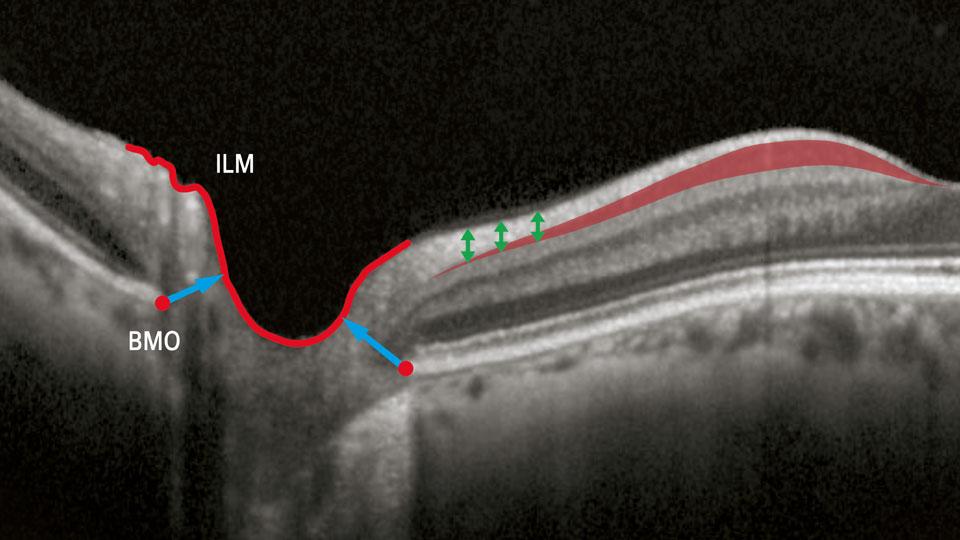 glaucoma structures