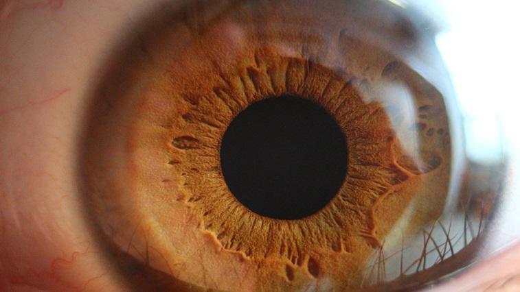 A large pupil