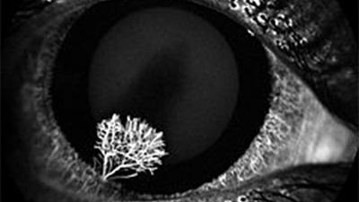 Ocular photography