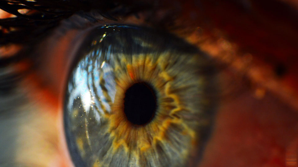 A 'filling' for the eye: UK scientists use synthetic gel to repair holes in the cornea