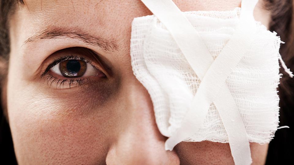 Unfortunate eye injuries