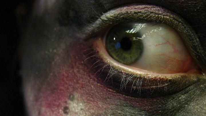 Halloween cosmetic lenses health advice