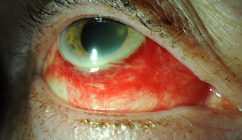 Figure 1 close up of an eye